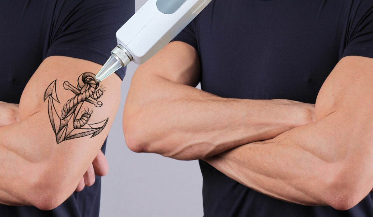 Laser Tattoo Removal Dermacos Dermatology Clinic